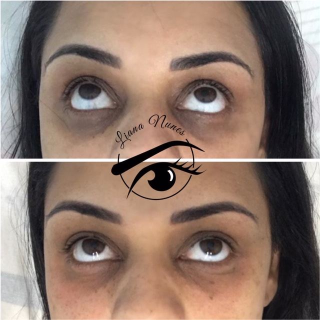 Dark Circles Camouflage Brazilian Technique There are many reasons on why not to get a tattoo under your eye for dark circles. dark circles camouflage brazilian